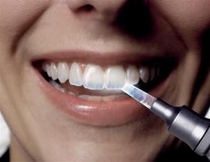 szkliwo zębów